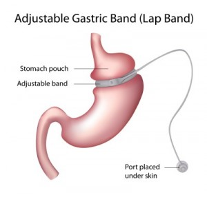 12176783_s.jpg  gastric lap band image